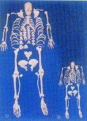 人體骨骼模型|168CM人體骨骼全身散骨模型 GD-0168