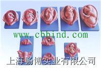 计划生育培训|计生模型|妊娠模型|胚胎妊娠发育过程模型 XC-414