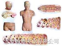 人体医学教学模型|人体头颈躯干横断断层解剖模型 SMR04