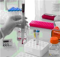ScreenCell? CC循环稀有细胞分离培养套装试剂盒 ScreenCell? CC