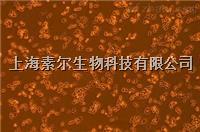 MC38細胞(小鼠結腸癌細胞系)